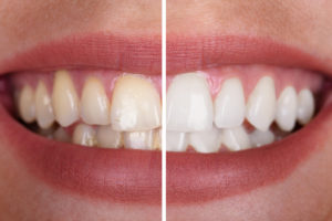 Teeth Whitening Racine, WI